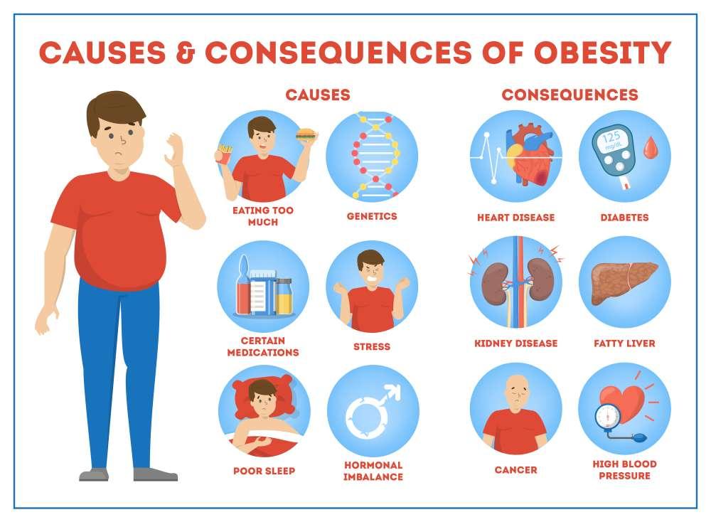 (childhood obesity statistics)