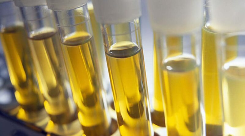 Urine Test: Normal Lab Values