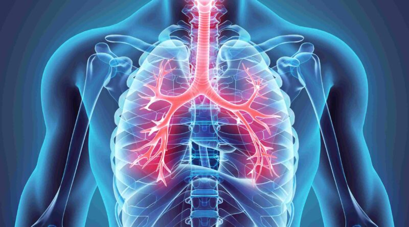 What is Emphysema?